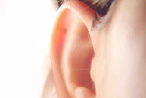 ausu uzdegimas
